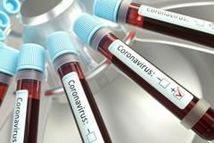 Coronavirus, oltre 1600 casi in Puglia e 34 decessi