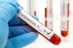Coronavirus, 424 nuovi casi in Puglia. Nella Bat 42 e un decesso