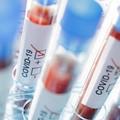 Coronavirus, primi due casi anche a Minervino Murge