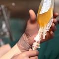 Plasma iperimmune, chi può donarlo e dove rivolgersi